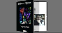 Tony Calix